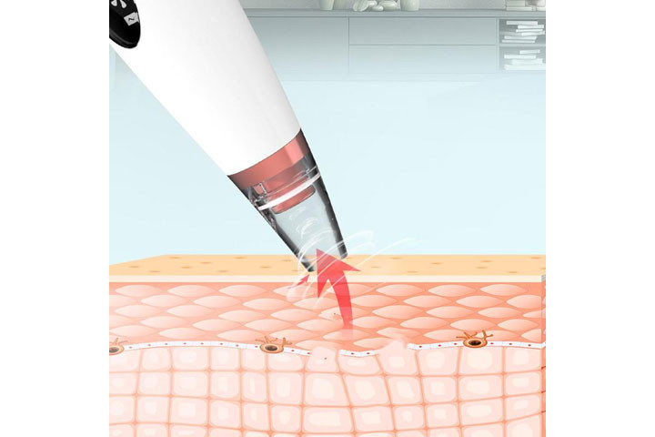Porerenser som fjerner urenheder og strammer huden op7